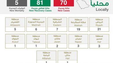 Photo of الصحة تعلن تسجيل 70 إصابة جديدة بفيروس كورونا و5 حالات وفيات وتسجيل 81 حالة تعافي